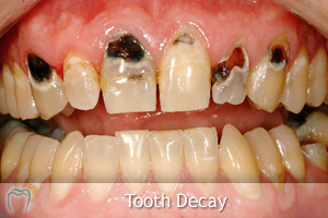 Tooth Decay Advice
