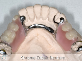 Dentures at Shelbourne Dental Clinic