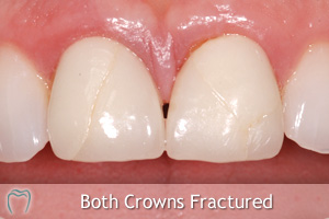 case 2 broken ceramic crowns