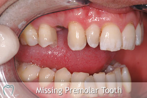 Dental Implant To Restore Missing Tooth